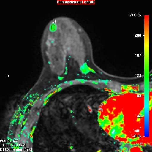 irm mammaire irm paris imagerie paris 13 radiologie irm scanner radiographie echographie doppler osteodensitometrie senologie infiltration paris 13 1
