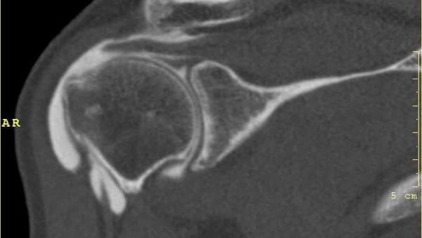 arthroscanner tdm rupture du tendon supra epineux infiltration paris imagerie paris 13 radiologie irm scanner radiographie echographie doppler osteodensitometrie senologie infiltration paris 13 1