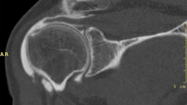 arthroscanner tdm rupture du tendon supra epineux infiltration paris imagerie paris 13 radiologie irm scanner radiographie echographie doppler osteodensitometrie senologie infiltration paris 13 2