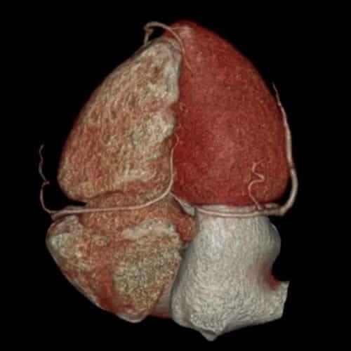 coroscanner scanner paris imagerie paris 13 radiologie irm scanner radiographie echographie doppler osteodensitometrie senologie infiltration paris 13 3