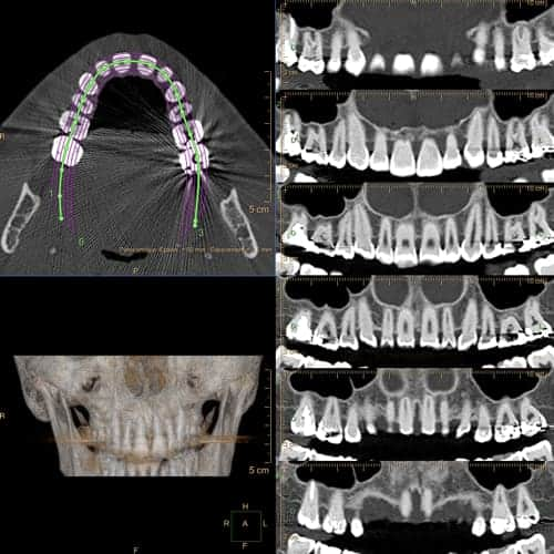 dentascanner scanner paris imagerie paris 13 radiologie irm scanner radiographie echographie doppler osteodensitometrie senologie infiltration paris 13