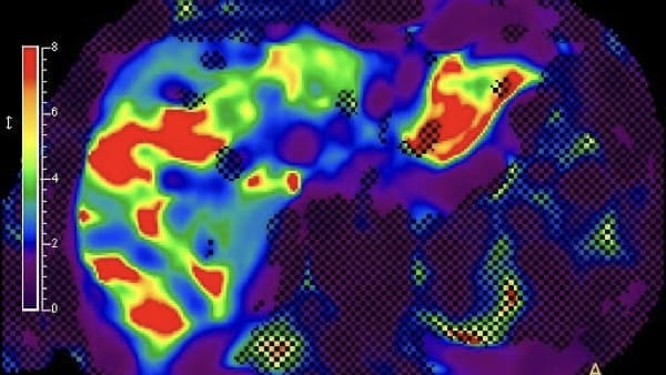 elasto irm hepatique actualites irm paris imagerie paris 13 radiologie irm scanner radiographie echographie doppler osteodensitometrie senologie infiltration paris 13 1