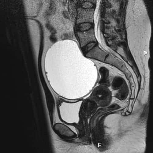 irm pelvis irm paris imagerie paris 13 radiologie irm scanner radiographie echographie doppler osteodensitometrie senologie infiltration paris 13