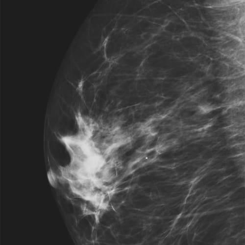 mammographie paris 13 imagerie du sein paris 13 senologie paris 13 1