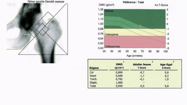 osteodensitometrie paris 13 imp13 1