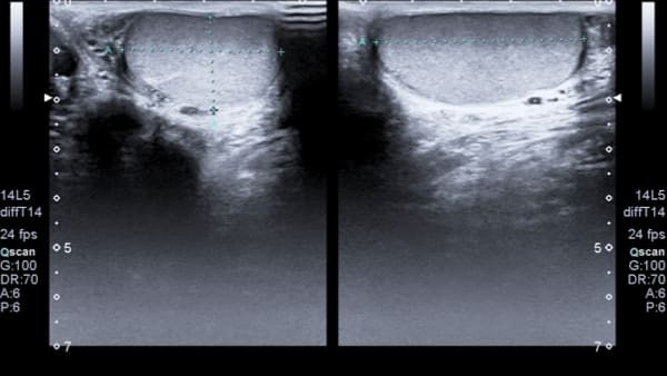 testicule gauche imagerie masculine echographie doppler paris imagerie paris 13 radiologie irm scanner radiographie echographie doppler osteodensitometrie senologie infiltration paris 13
